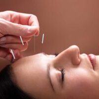 bigstock-Woman-Receiving-Acupuncture-Tr-279121492