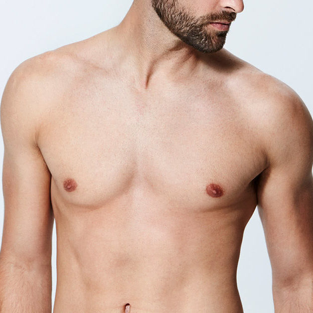 model-laser-hair-removal-for-men